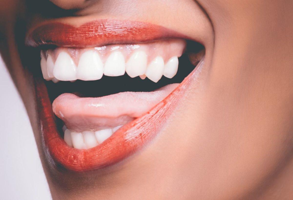 rossz szájhigiénia